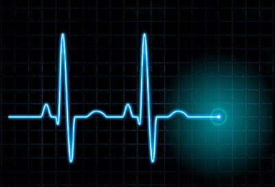 heartbeat as on ekg