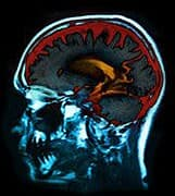 Deep Brain Stimulation Safe for Older Parkinson's Patients: Study