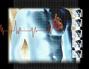 Too Many Heart Scans May Pose Radiation Risks, Cardiologists Say