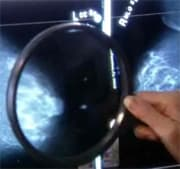 But expert says cancer-fighting benefits outweigh