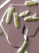 Study suggests pathway from oral bacteria to