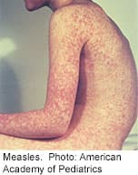 Thumbnail Image:Measles Still a Threat, U.S. Health Officials Warn