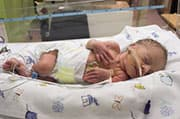 Preemies May Have Higher Risk of Blood Clots, Even as Adults
