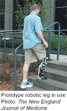 State-of-the-art prosthesis relies on user's
