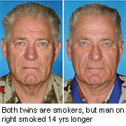 Siblings who smoked had more wrinkles, creases,