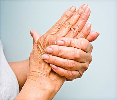 What Do You Know About Psoriatic Arthritis?