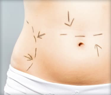 marks on abdomen for cosmetic surgery