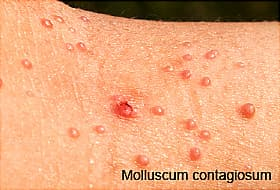 hiv and rashes: what causes them and what can you do about them?, Skeleton