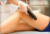 laser epilation