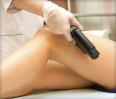 WebMD - Laser Hair Removal