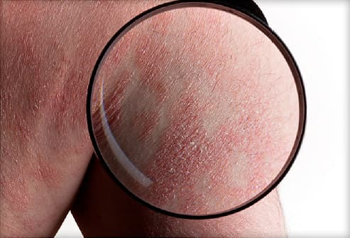 More information on psoriasis 1