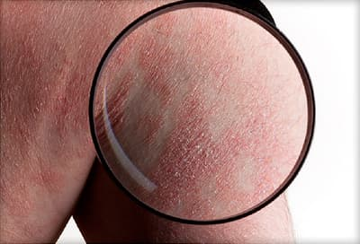 Lamictal Rash Picture A Comprehensive View