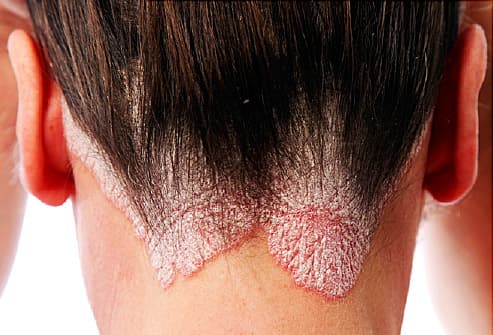 The symptoms of psoriasis vary depending on the type you have 2
