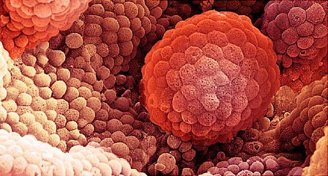 650x350_what_is_metastatic_prostate_cancer_ref_guide.jpg (650×350)