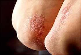 plaque psoriasis on elbows