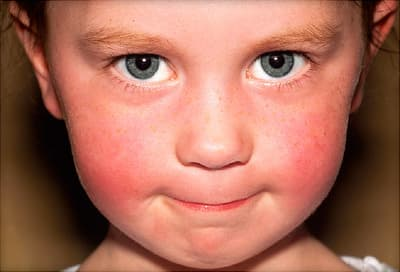 child with red cheeks