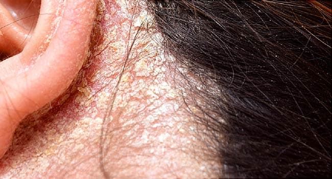 Pictures Conditions That Affect Your Scalp