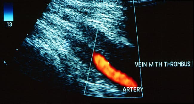 Slideshow: A Visual Guide to Deep Vein Thrombosis