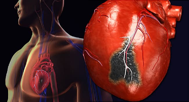 heart attack: symptoms, diagnosis, treatment, and more - webmd, Skeleton