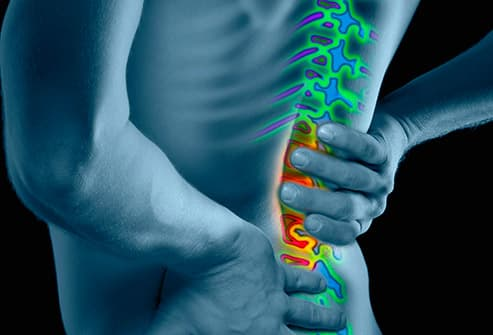 WebMD Back Pain Health Center -- Information and News About Back Pain