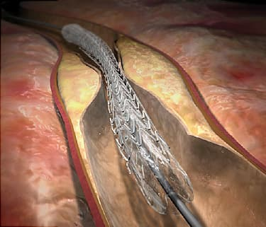 Heart Surgery Video: What Happens During an Angioplasty?