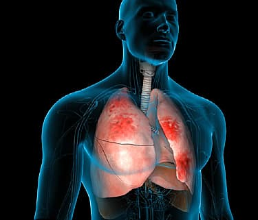 Pneumonia Video: How Your Body Fights It Off
