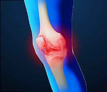 osteoarthritis video: how to get relief for joint pain, Skeleton