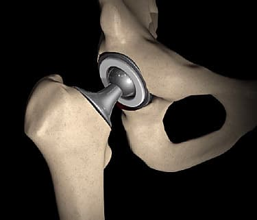 Image result for hip replacement