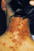 Skin Allergies Photo