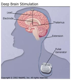 Deep Brain Stimulation: Multiple Sclerosis Tremors (Multiple Sclerosis)
