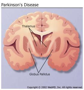 parkinson