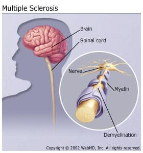 What Is Multiple Sclerosis? What Causes MS?