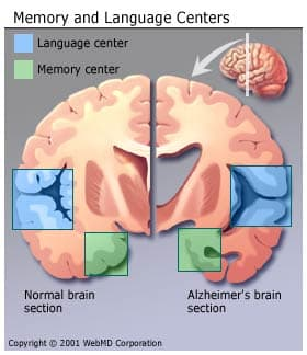 Memory and Language Centers