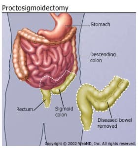 Proctosigmoidectomy