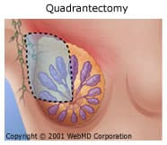 Quadrantectomy