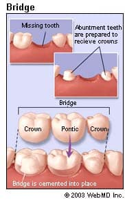 An Overview Of Dental Bridges To Replace Missing Teeth