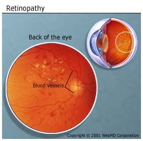 retinopathyLarge
