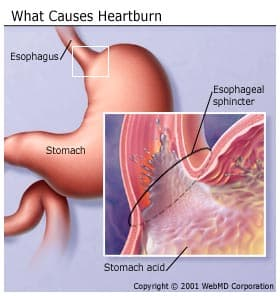 Diet For Reducing Heartburn