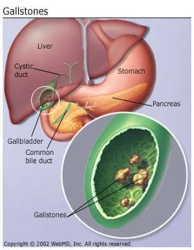 gallstones picture, types, causes, risks, symptoms, treatments, Human Body