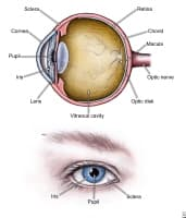Acute Angle Closure Glaucoma Image of the Eye