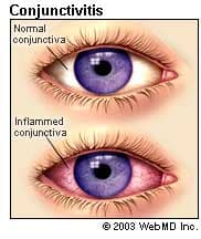 conjunctivitis (pinkeye) causes, symptoms, and treatments of, Skeleton