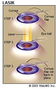 LASIK (Eyesight )