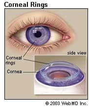 Eye Health - Corneal Rings