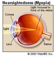 Myopia