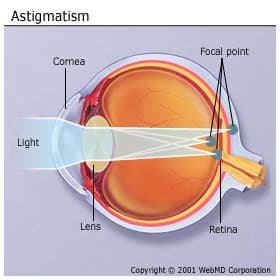 astigmatism ophthalmology and light sensitive surface Astigmatism results from a cornea or natural lens that has an out-of-round shape due to this, incoming light rays are focused unevenly onto the back of the eye.