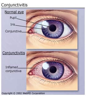 Understanding Conjunctivitis