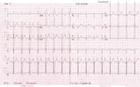 ECG of High Blood Pressure Patient