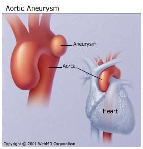 aortic aneurysm