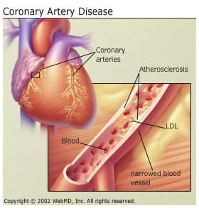 understanding the causes of heart disorder or coronary heart disease Heart disease describes a range of conditions that affect your heart diseases under the heart disease umbrella include blood vessel diseases, such as coronary artery disease heart rhythm.