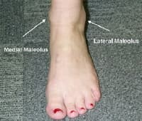 lateral malleolus swelling - photo #11